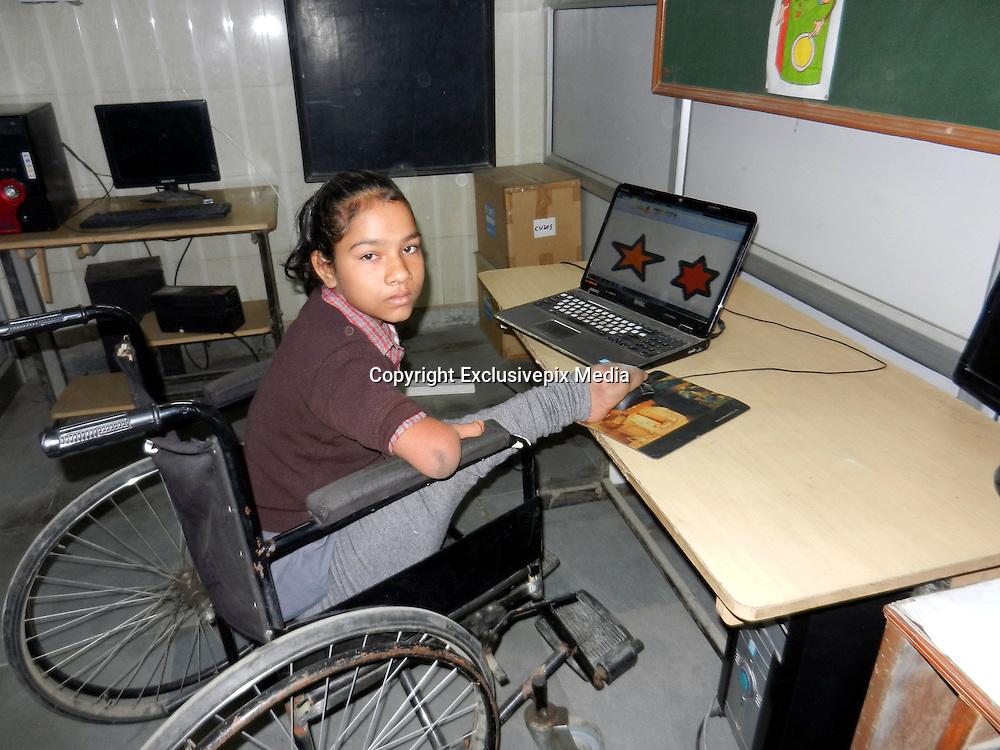 Girl Born With Leg And No Arms  Nick York-4154