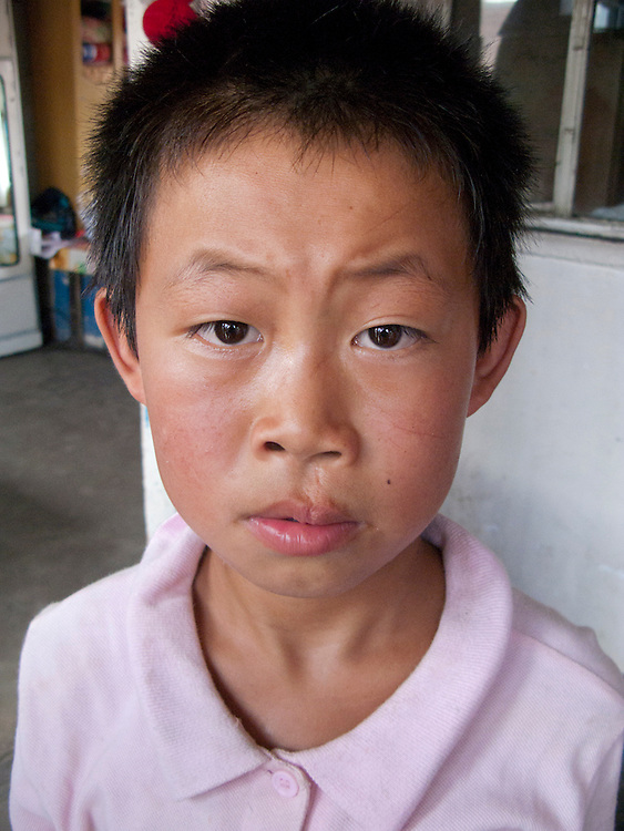 Children in China with clefts
