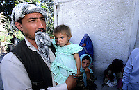 KABUL 06 August 2005..AVECINA EMERGENCY HOSPITAL....Janat cradles Shabana into his arms, and takes her to  the Head of Dermatology, Dr Parwani.....The Doctor will confirm his previous diagnosis as 'Hemangioma' a tumor made-up of dilated blood vessels that usually appears shortly after birth, although it may be present at birth. Hemangiomas on the face can be disfiguring and may interfere with visual development or cause obstruction of the airway. [.....]
