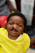 No. 356.Divine NOLEY, female, 3 months old. Bilateral cleft lip, BCL, surgery, 6/9/2011.Operation Smile South Africa.Clinique Ngaliema, Avenue Des Cliniques.KInshasa, DRC Mission, June 3rd-12th 2011..© Zute & Demelza Lightfoot.www.lightfootphoto.com...