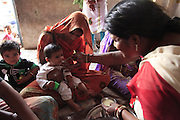 An under-nourished child is fed a mirco-nutrient enriched peanut paste called Plumpynut, at an Anganwadi nutrition clinic in Madhya Pradesh, India.