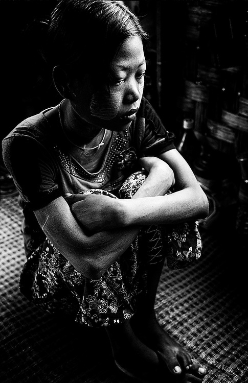25 years old, this HIV Positive patient sits quietly at the HIV & Aids Clinic on the outskirts of Yangon (Rangoon) Myanmar (Burma) January 2012