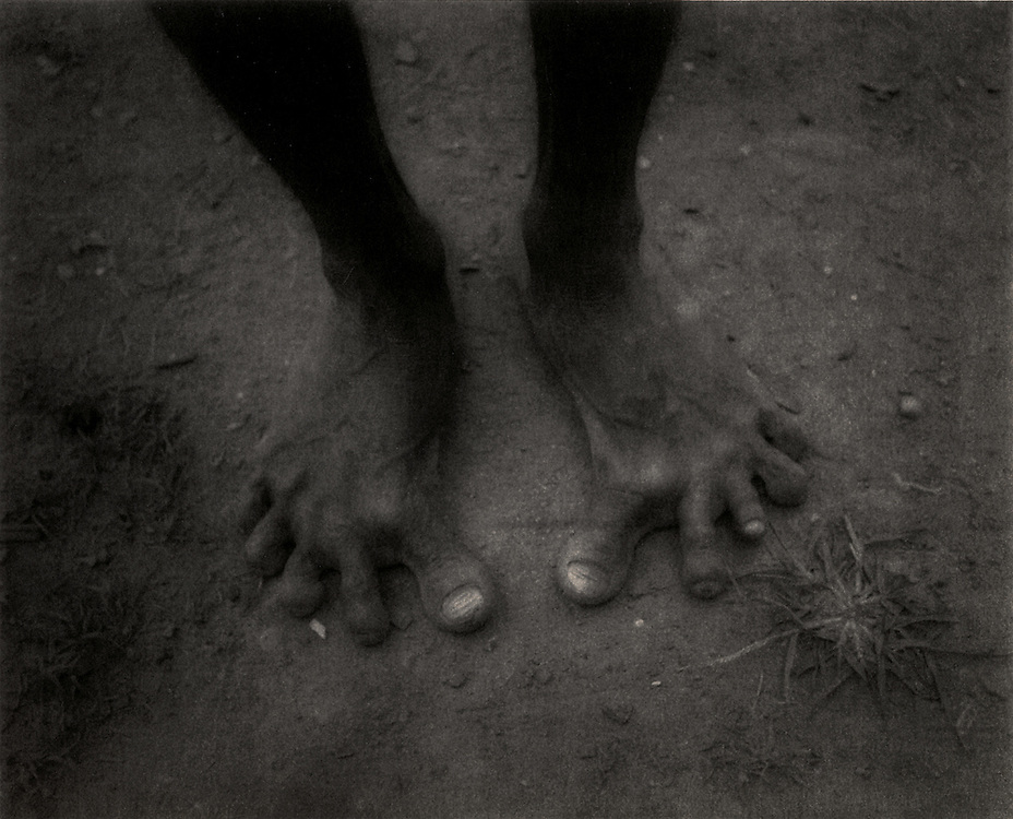 Death Throes of a Great Rainforest - Agta Negrito hunter's feet, Sierra Madre Mountains rainforest, Luzon, Philippines.-This Agta Negrito hunter's feet have been formed from a lifetime of barefoot hunting in the mountain rainforest.  His clan was one of the last semi-nomadic,.undersized (pygmy) aboriginal forest dwellers who made their way on foot to the Philippines Archipelago from present day Malaysia during the last ice age.