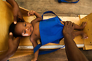 A child has her height measured to track growth at the Kono government hospital in Koidu, Sierra Leone on Wednesday March 17, 2010.
