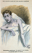 Cholera: Patient in typical cholera attitude. From French medical book published c1890.