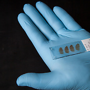 Dr. Moussa holds slides with longitudinal slices of mouse brain from experiments at his laboratory at Georgetown University, on Wednesday, August 17, 2016.  Dr. Moussa is investigating new therapeutic treatments for Parkinson's, Alzheimer and other related diseases.