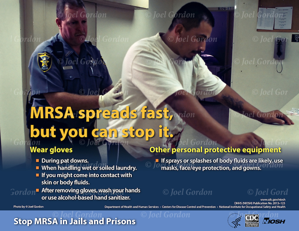 Stop MRSA in Jails.  MRSA spreads fast but you can stop it. Wear gloves during pat downs.