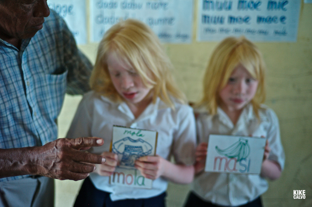 """Twin albino Guna Indigenous students at a Spanish-Guna bilingual school in Ustupu Island. The Kuna have a very high incidence rate of albinism. In Kuna mythology, albinos (or sipus) were given a special place. They are considered a special race of people, and have the specific duty of defending the Moon against a """"dragon"""" which tries to eat it on occasion during a lunar eclipse."""