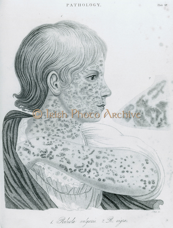 'Child with Measles - Rubeola, morbilli. An attack of measles renders the patient vulnerale to secondary infections, which made it a dangerous childhood illness before the invention of modern drugs.  Engraving 1823.'