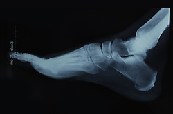 x-ray film of a human foot- side view