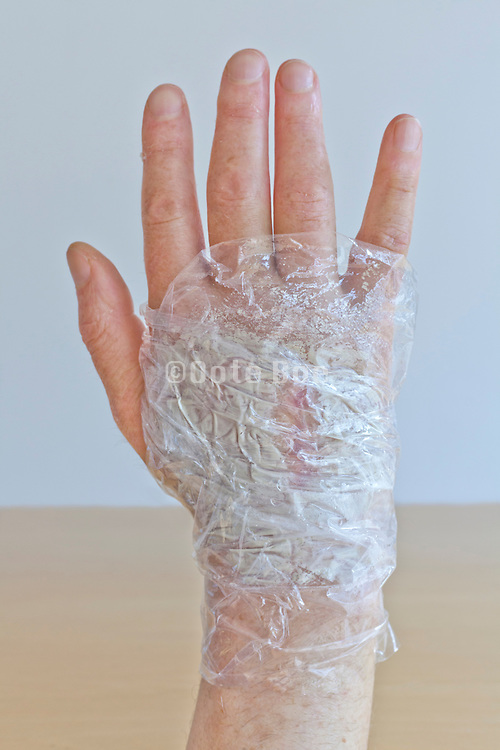 swollen hand covered with a healing clay wrapped in clear cellophane