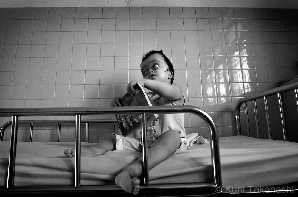 Cao Thi Lan Phuong, 9, who suffers Crouzon Syndrome, sits on a bed at Tu Du Hospital in Ho Chi Minh City, Vietnam. .Many children in the hospital, who are from areas that were heavily sprayed by Agent Orange during the war, suffer mental and physical problems due to exposure to the toxic herbicide..