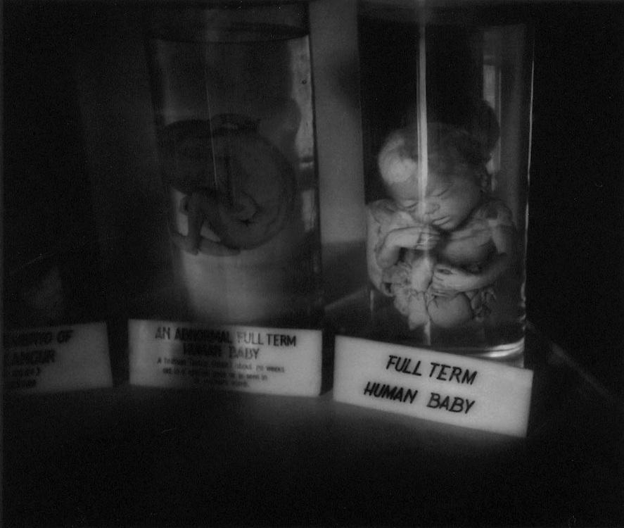 Human baby specimen in the Indian Museum, Calcutta, India.