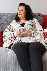 Claire Tickle who suffered from lipoedema, a hereditary disease which caused massive swelling to her legs is well on the road to recovery following nine operations to correct the condition. Eastleigh, Hampshire, November 04 2018.