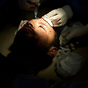 A rebel fighter receives emergency medical treatment at Ajdabiya hospital after been shot by Gaddafi forces during a fierce battle in the city outskirts.