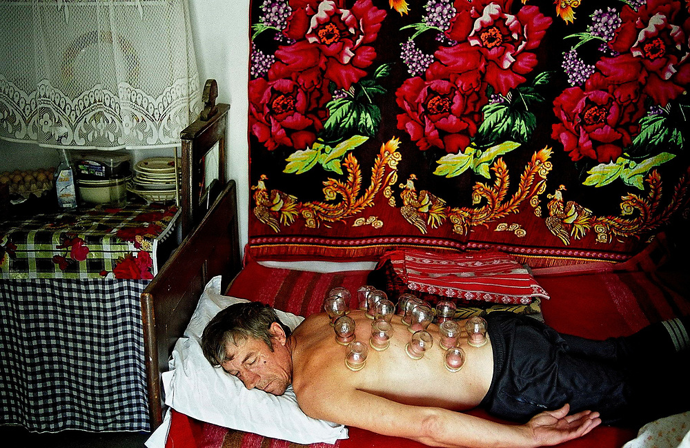 Senia Sava, 40 years old, suffering for epilepsy, receives a traditional treatment, with suction cups, to relieve his back pains caused by a flu. Danube Delta, Romania