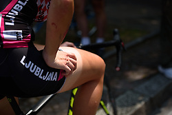 War wounds at Giro Rosa 2016 - Stage 4. A 98.6 km road race from Costa Volpino to Lovere, Italy on July 5th 2016.