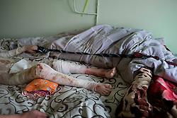 Ukraina<br /> Artem, 7 &aring;r, ligger br&auml;nnskadad p&aring; ett sjukhus i Donetsk. Han har tredje gradens br&auml;nnskador p&aring; 60 procent av kroppen efter att en stridsvagn exploderat n&auml;ra honom och hans kusin. Kusinen Xantia, 9 &aring;r, dog p&aring; platsen. <br /> Artems pappa Alexander vakar &ouml;ver sin son.<br /> <br /> Photo: Niclas Hammarstr&ouml;m