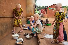 Albinism in Tanzania