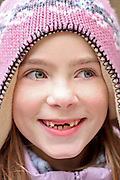 Young Czech girl is smiling showing off her missing front teeth.