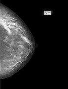 Breast cancer. X-ray of woman's breast for early identification of breast cancer. Breast cancer is the most common type of cancer in women. The cancer can invade surrounding tissue and spread to other parts of the body (metastasis). Treatment is with removal of the tumour only, where possible, or complete removal of the breast. Surgery is often combined with radiation therapy and chemotherapy.