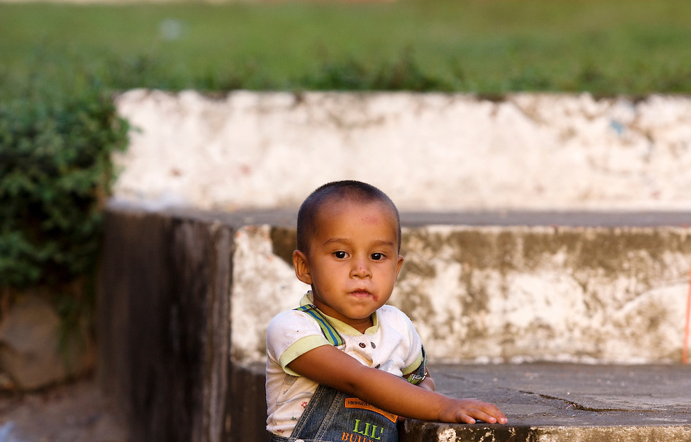 .A small boy with sores around his mouth plays in the streets of Moyagalpa on the island of Ometepe