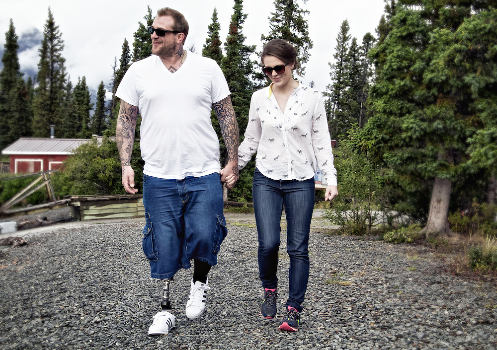 Prosthetic limbs enable individuals with limb amputations to live fuller, more independent lives.
