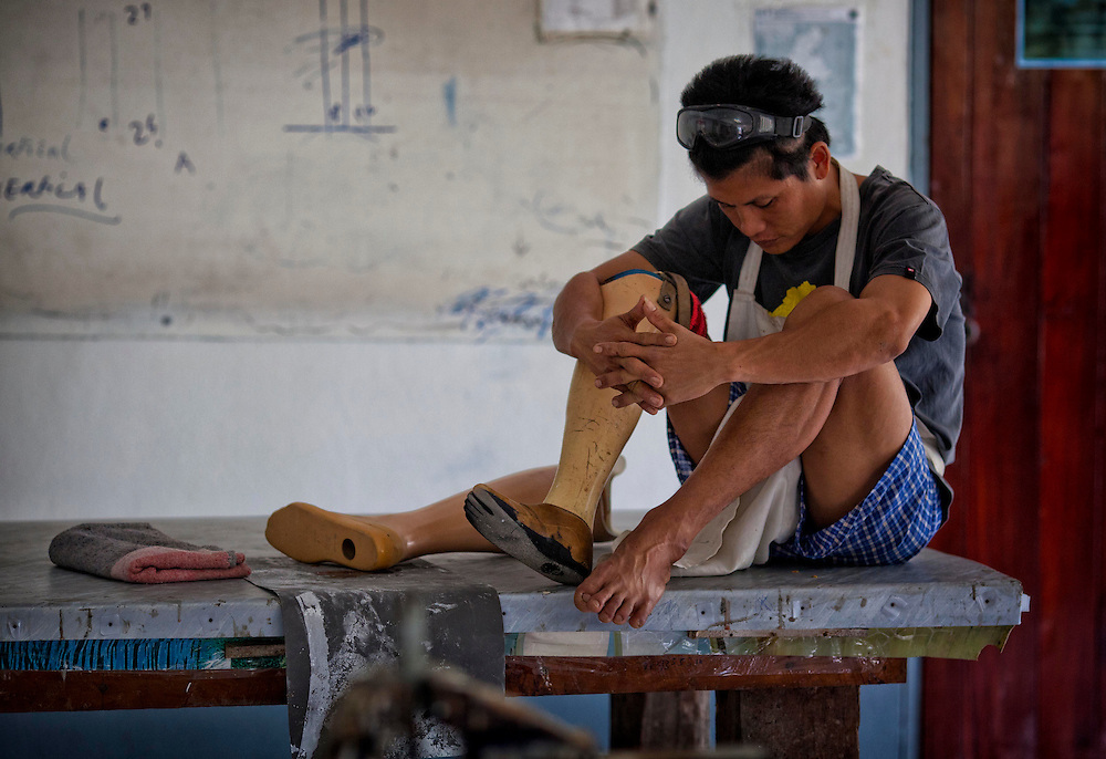 Technician Saw Hla Htun, himself a landmine victim, pauses during work at the Mae Tao clinic in Mae Sot, Thailand, Tuesday, Feb. 21, 2012.
