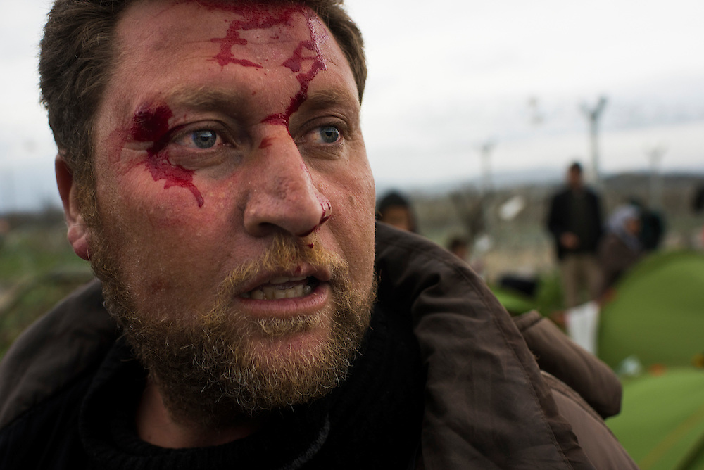 An Iraqi man reacts after being hit in the head with a rock during a fight at a refugee camp on the Macedonian (FYROM) border on March 7, 2016 in Idomeni, Greece. The fight over living space broke out as migrants waited for EU Leaders to make a decision on the Balkan refugee route.