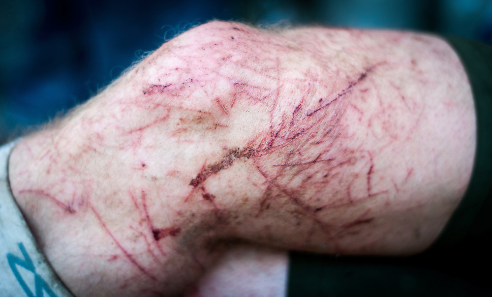 Saw briars damage at the Barkley Marathons.