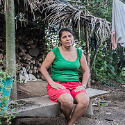 "Rosy, 44 years old. She lives in the small town of Arce, around 40 minutes from the capital San Salvador. She has been working as a maquila worker since 1995. She currently works in onw of the 6 factories in El Salvador of the famous brand ""Fruit of the Loom"". She suffered from cronic stress disorder and depression caused by the constant and high pressure at work. She works around 9 hours per day earning an average salary of 220-275 US dollars depending on the production bonus and the amount of clothes she manages to sew every week. She lives in her house with her 2 kids"