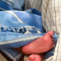 Madagascar <br /> Mahambo nutrition centre<br /> Rakoto Chrisostome premature baby aged 1 month