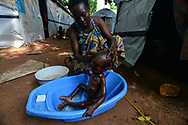Justina Marco, 27, bathes her fragile son Edmond, 1 year old and severely malnourished, at a camp for displaced people on the grounds of St. Mary Help of Christian Cathedral in the town of Wau, South Sudan. The mother and child are among 2 million people forced to flee their homes since civil war broke out in the world's newest nation, and Edmond is among another 2 million who are on the verge of starvation, according to U.N. figures.