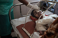 India, Maharashtra. Munisha reported 50% of burns on her body. <br /> She said that because her husband accused her to have an affair with another man she attempt suicide pouring kerosene and setting her self on fire as she was alone at home.<br /> Different is the version of the neighbours who say that the day of the accident they heard shouting and fighting between Munisha and her husband. Alessio Romenzi