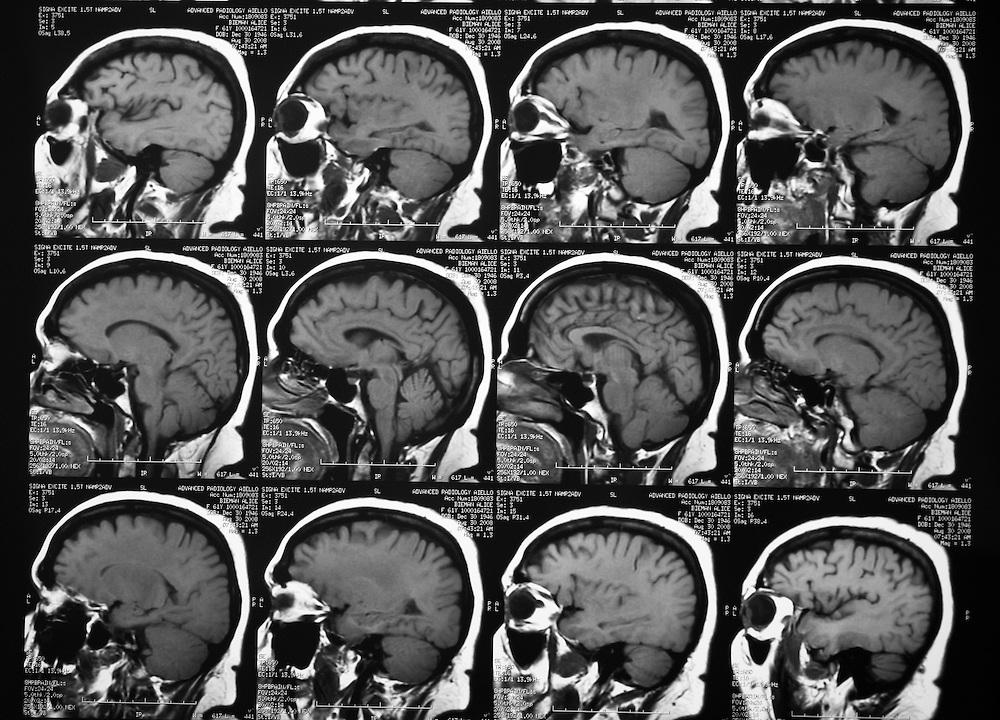 MRI film