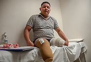 Colombia: Landmine Victims Receive Donation of Prosthesis, 26 Oct. 2016