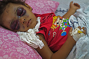 Wounded Palestinian 2 1/2 year old girl Naama al Foul lays in a hospital room at Shifa Hospital in Gaza City July 22,2014. The explosion from an  Israeli air strike by her home in the Sabra neighborhood of central Gaza caused her tiny body to be thrown as high as the second story of the home   into the air before she landed straight down on her face breaking her forehead and wounding her eyes. (Photo by Heidi Levine /Sipa Press).<br /> <br /> Today was the 15th day for me in Gaza. For over two weeks I had seen so many children killed I was finally assigned to document children who had survived but laid wounded in Shifa hospital in Gaza city .<br /> Her father Fadi told us Fadi Abu Al Foul recalled how the Israeli airstrike that smashed into the street outside his family&rsquo;s house flung his two-year-old daughter, Ne&rsquo;ma, into the air like a rag doll.<br /> <br /> &ldquo;It sent her as high as the second floor of the apartment,&rdquo; he said.<br /> <br /> When I photographed her she was laying still and sleeping . I did not want to wake her up , she was not even able to open her eyes yet since the incident .