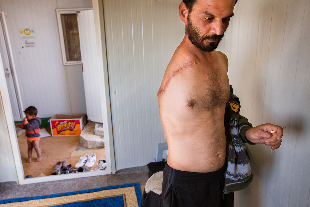 Eaad Hariri, 39, was injured in Daraa, Syria in November 2013 during an Assad regime bombing. Despite his severe injury, he is still able to care for his young family and asks for very little assistance. Feb. 8, 2014. Zaatari Camp, Jordan. (Photo by Gabriel Romero/Alexia Foundation ©2014)