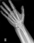 wrist of a 44 year old male patient with a Distal Ulna Fracture
