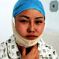 "BEIJING, 29.July 2004 :Liu Chunling, a student who had her jaw crushed to slim her face, sits in her room one day after the surgery in doctor Shi Sanba's hospital in Beijing, July 29, 2004, in China. Plastic surgery is gradually is becoming big business in China's capital. Shi's hospital has been flooded with teenage patients ever since she started to offer ""special summer reductions"" for students. Yang Yuan, the would-be model who'd  had plastic surgery and had sued the organizer a model contest after being banned from the contest, also was treated in Shi's hospital ...Whereas in Mao Zedong's China, even pigtails were seen as a sign of vanity (and had to be cut off) , nowadays, urban Chinese women seek about every means in order to distinguish themselves from the masses.  This year Beijing will organize the worl'd first beauty pageant for women had had plastic surgery..."