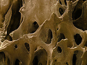 SEM of Human bone. This image shows the cancellous (spongy) bone of the human shin. Bone tissue is either compact or cancellous. Compact bone usually makes up the exterior of the bone, while cancellous bone is found in the interior. Cancellous bone is characterised by a honeycomb arrangement of trabeculae. These structures help to provide support and strength. The spaces within this tissue normally contain bone marrow, a blood forming substance.  Magnification is x40 when printed 10 cm wide.