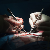 Chirurg Daan Meester tijdens een Bypass operatie. A coronary artery bypass graft (CABG). This is a surgical procedure performed on the heart to treat diseased coronary arteries.
