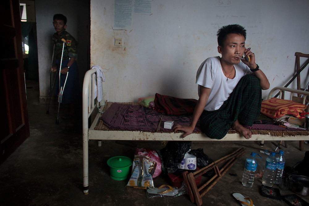 Kachin's militia member Lalaw Ze Dai, from Waimaw village, 25, smoke and  talk on the phone in the General Military Hospital in Laiza village close to the China border, Myanmar on July 26, 2012. He was injured by a landmine in June, 26, 2012 loosing part of his right leg on top of knee.
