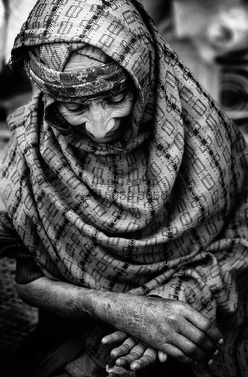An old woman evacuated from the Neelum valley with a broken arm.<br /> Muzz. Dec. 2005