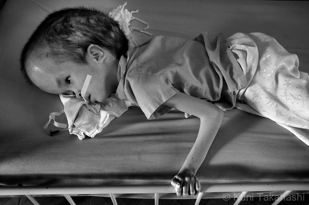 Pham Thi Phuong Khanh, 14,  lies on the bed on July 6, 2009, at Tu Du Hospital in Ho Chi Minh City, Vietnam. .Many children in the hospital, who are from areas that were heavily sprayed by Agent Orange during the war, suffer mental and physical problems due to exposure to the toxic herbicide..