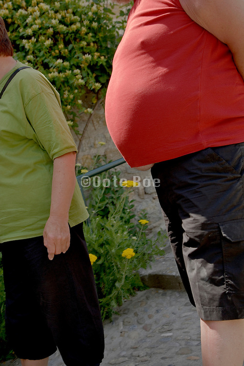overweight person's belly