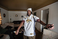 FLINT, MICHIGAN, USA - JANUARY 22: Flint, Michigan resident Eric Davis, 53, shows his dry skin and rash that he went to see a doctor about Friday, January 22, 2016 at his Flint, Michigan. He believes the city water to his home is causing the skin problems.  (Photo by Bryan Mitchell)