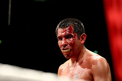 A battered and bloody Marco Antonio Barrera bleeds heavily during the WBA and WBO Inter-Continental Lightweight title fight between Amir Khan and Marc Antonio Barrera at the MEN Arena on March 14, 2009 in Manchester, England.