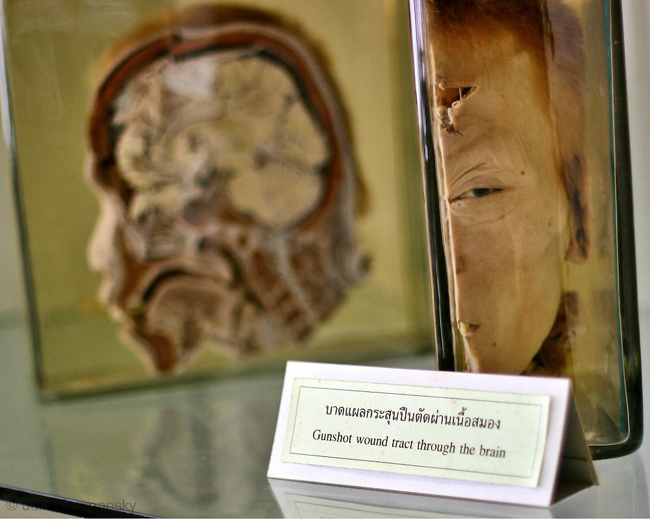 The Siriraj Medical Museum, known as the Museum of Death, is a medical museum in Bangkok,Thailand.  The museum consists of five small medical museums: the Ellis the Pathological Museum, Congdon Anatomical Museum, Sood Sangvichien Prehistoric Museum and Laboratory, Parasitology Museum, and the Songkran Niyomsane Forensic Medicine Museum.