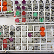 Test tubes in a laboratory at the Centers for Disease Control laboratory in San Juan, Puerto Rico. Right now, Zika is spreading rapidly in Puerto Rico and pregnant women are at risk for becoming infected with Zika which can cause microcephaly and other birth defects. If the current trends continue, at least 1 in 4 people, including women who become pregnant, may become infected with Zika.